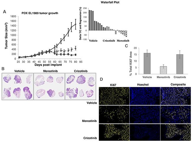Anti-tumor activity of merestinib in patient-derived xenograft tumors (EL1989) bearing TPM3-NTRK1 fusion.