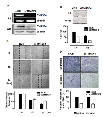 Suppression of TM4SF4 expression in A549 cells retarded cell growth, migration, and invasiveness.