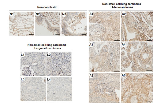 TM4SF4 expression in lung adenocarcinoma but not in large cell carcinoma.