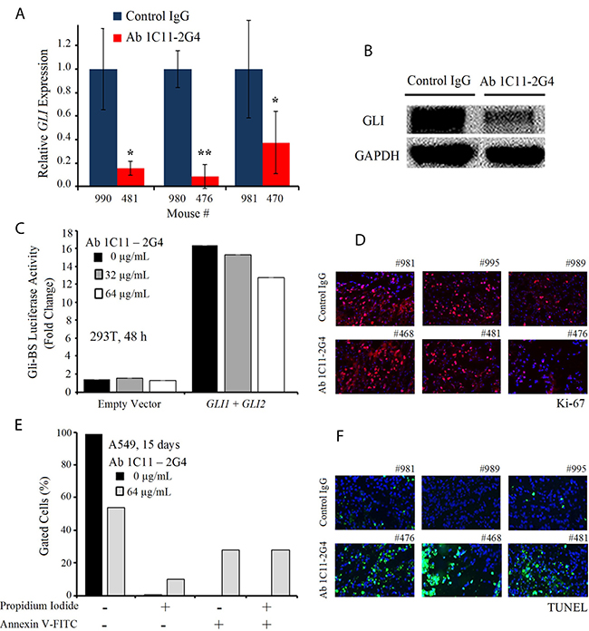 C-term Shh Ab 1C11–2G4 treatment down-regulates Gli and induces apoptosis.