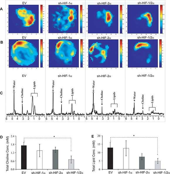Oncotarget   Metabolic consequences of HIF silencing in a