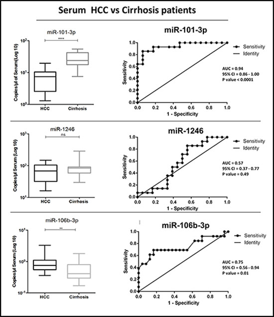Distribution of levels and ROC curve analysis of serum miRNAs miR-101-3p, miR-1246 and miR-106b-3p, in HCC vs. cirrhosis patients.