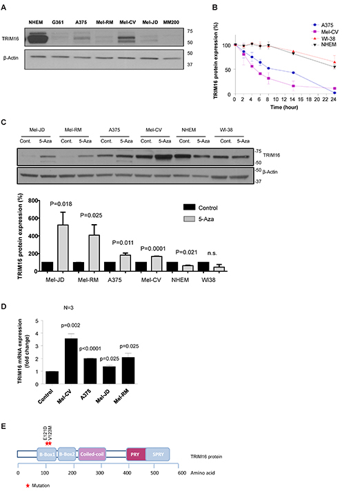 TRIM16 protein expression and half-life is decreased in melanoma cell lines compared to NHEM and is increased following treatment with the demethylating agent, 5-Aza.