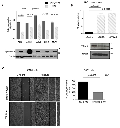 TRIM16 over-expression reduces melanoma cell proliferation and migration.
