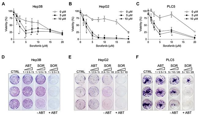 ABT-263 potentiated sorafenib cytotoxicity against different hepatoma cell lines.