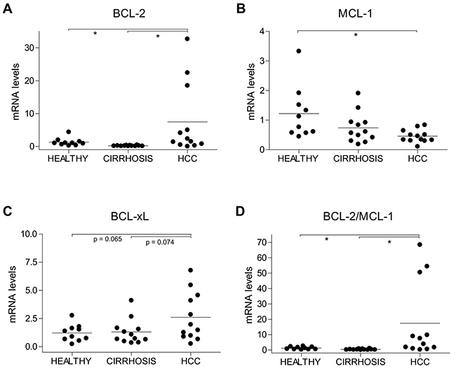 Alterations in BCL-2, MCL-1 and BCL-xL mRNA levels in HCC patients.