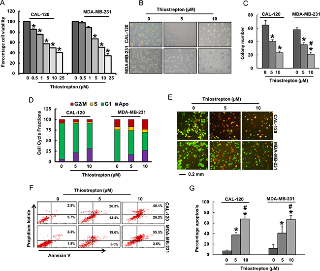 Oncotarget | FoxM1 is an independent poor prognostic marker and