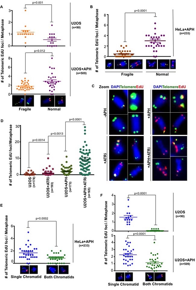 Replication stress induced telomeric MiDAS does not correlated with telomere fragility.