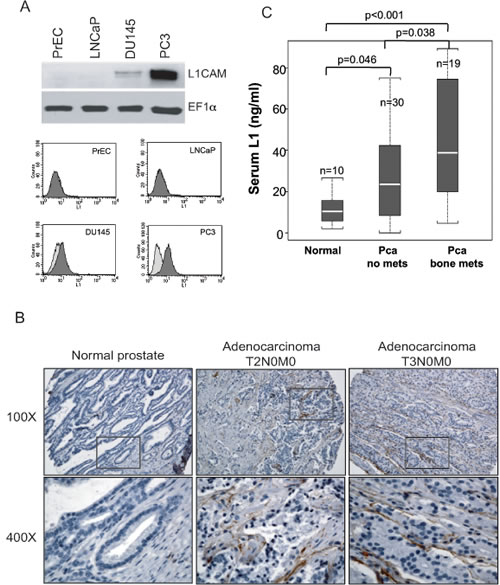 Detection of L1 cell adhesion molecule (L1CAM) expression in prostate cancer cell lines and clinical specimens.