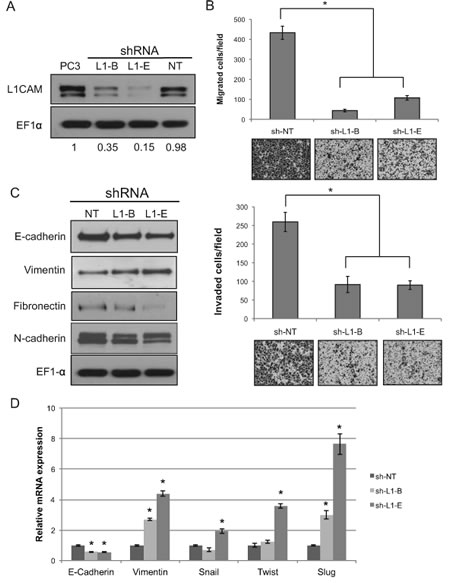 Effects of L1 cell adhesion molecule (L1CAM) gene knockdown on the migratory and invasive abilities of PC3 prostate cancer cells.