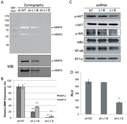 Effect of L1 cell adhesion molecule (L1CAM) shRNA on matrix metalloproteinase and nuclear factor NF-κB activation in prostate cancer PC3 cells.