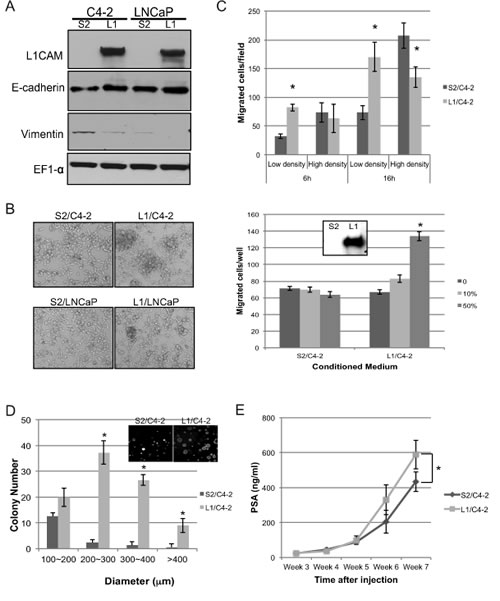 Effects of L1 cell adhesion molecule (L1CAM) overexpression in L1CAM-null prostate cancer cells.