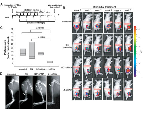 Therapeutic effects of L1 cell adhesion molecule (L1CAM)-siRNA in an experimental model of prostate cancer bone metastasis.