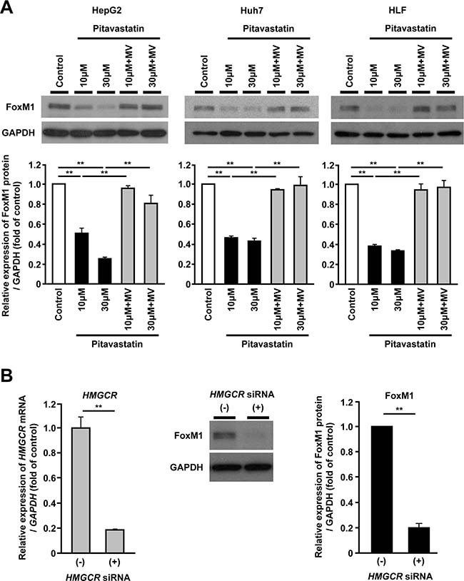 FoxM1 expression is regulated by the mevalonate pathway in human hepatoma cells.