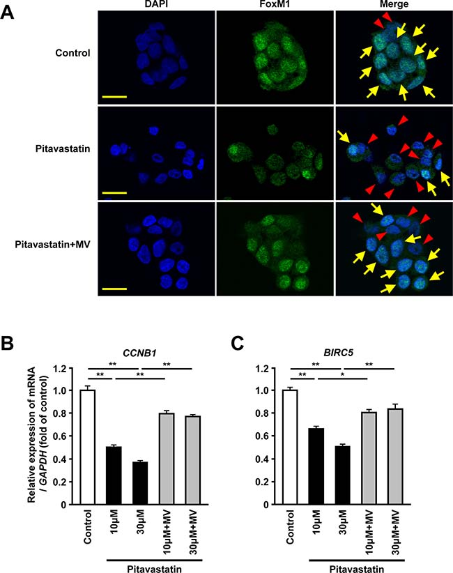 Inhibition of HMGCR decreases the nuclear expression and the transcriptional activity of FoxM1 in human hepatoma cells.