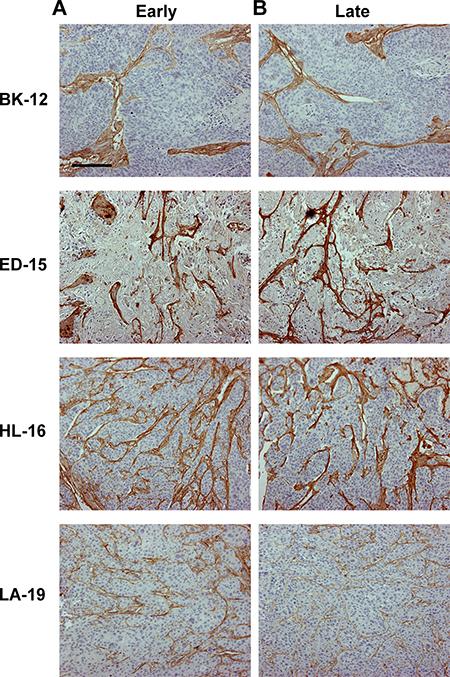 Tumor extracellular matrix.