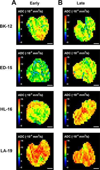 Diffusion-weighted magnetic resonance imaging-derived parametric images.
