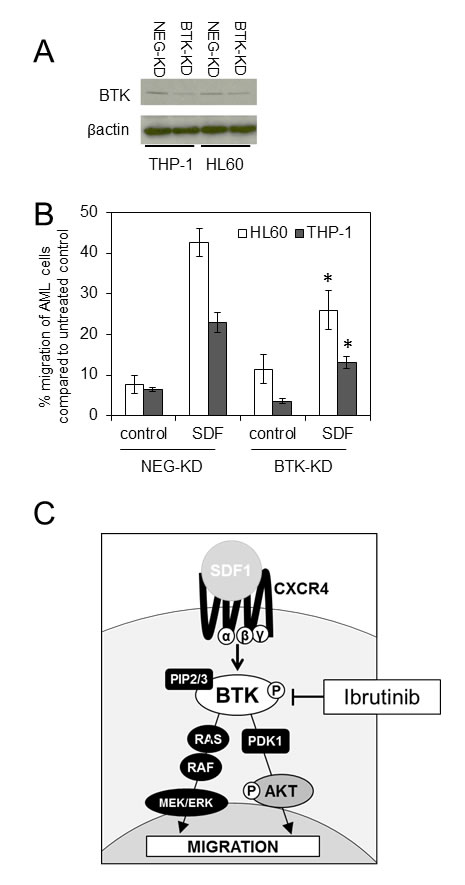 Knockdown of BTK inhibits SDF1 induced migration in AML.