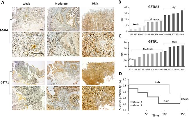 Correlation between expression of GSTs proteins and survival of CC patients.