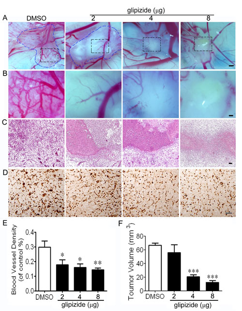 Glipizide suppresses breast cancer growth and angiogenesis.