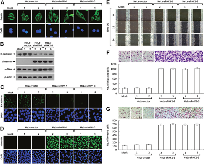 HK1 knockdown causes a typical EMT change and accelerates tumor cell motility.