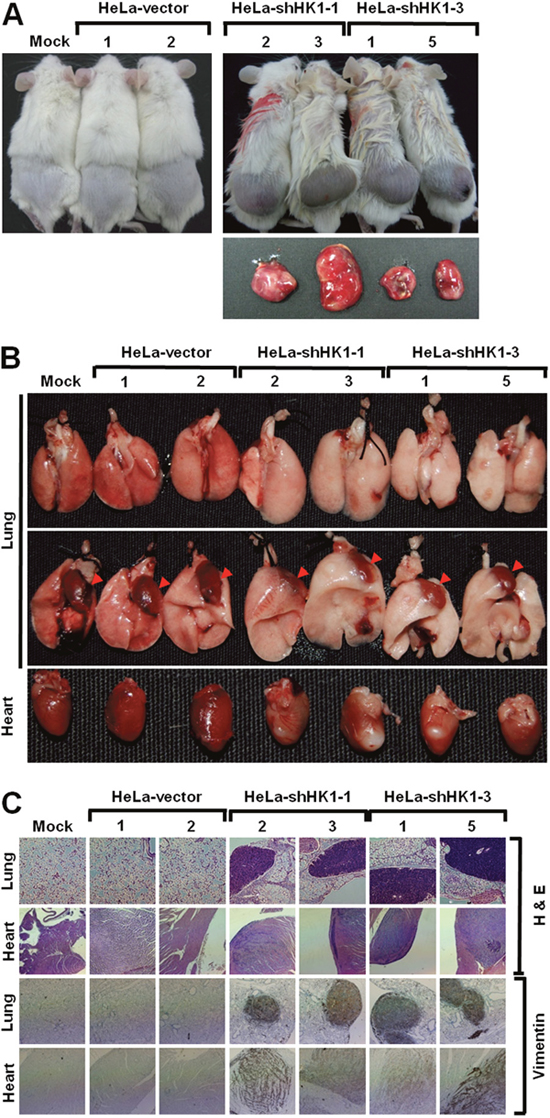 HK1 knockdown induced EMT switch accelerates tumor malignancy in vivo.