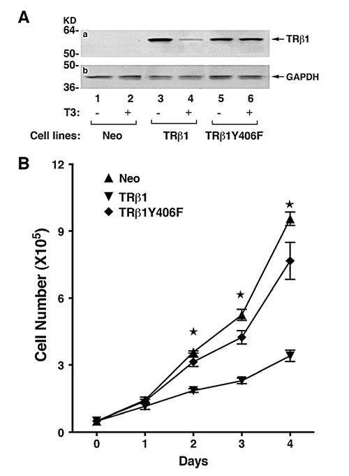 Comparison of growth rates of MDA-TRβ1, MDA-TRβ1Y406F and Neo control cells.