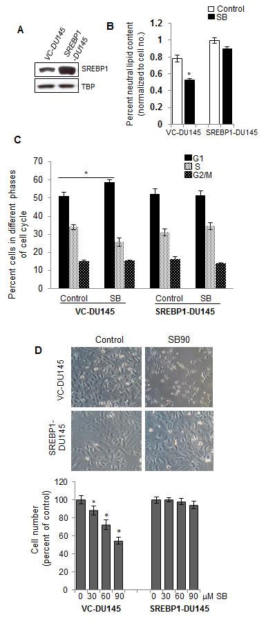 SREBP1 overexpression abrogates silibinin efficacy against PCA cells.