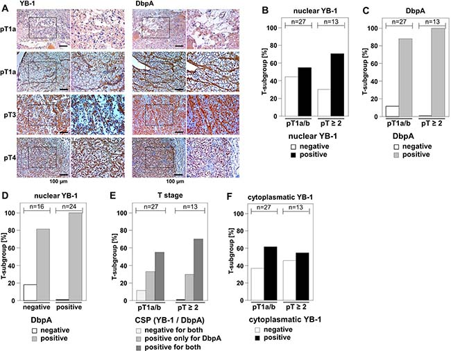 Overexpression of DbpA is associated with overexpression of YB-1 in clear cell renal cell carcinomas.