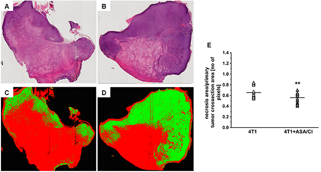Effects of dual anti-platelet therapy with aspirin and clopidogrel on necrosis area in the primary tumour in orthotopic metastatic breast cancer model.