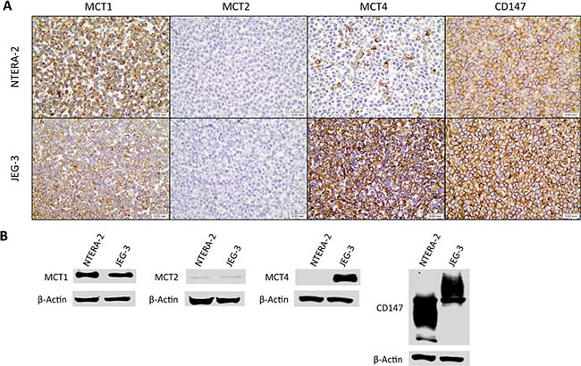 Expression of monocarboxylate transporters and the chaperone CD147 in the germ cell tumor cell lines JEG-3 and NTERA-2.