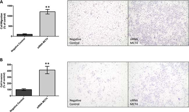 MCT4 silencing increases cell migration and invasion of JEG-3 cells.