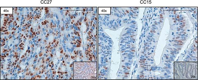 Representative images of CCND1 immunostaining.