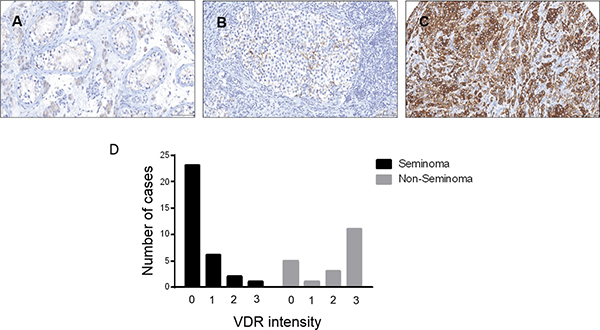 Vitamin D receptor expression in testicular germ cell tumors.