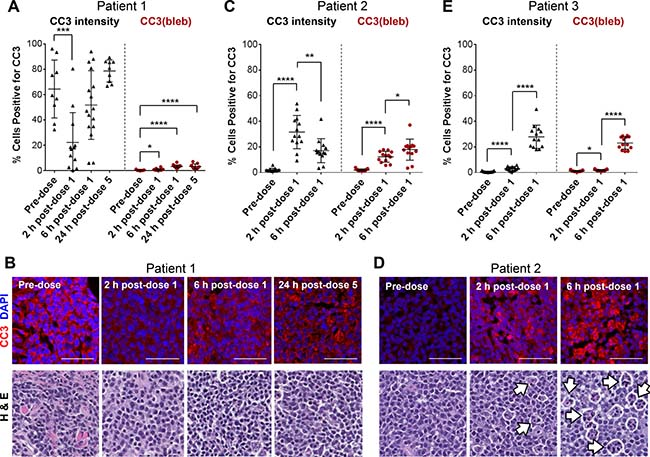 A CC3 blebbing mask improves the accuracy and precision of CC3 IFA−based apoptotic cell enumeration in FFPE tumor biopsy samples from canine lymphoma patients.