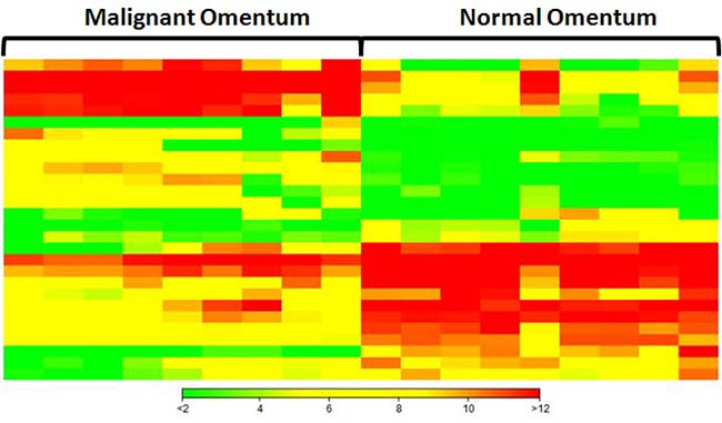 Hierarchical clustering analysis of top 20 up-regulated and top 20 down-regulated miRNAs in omental metastases.