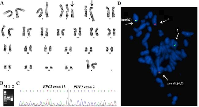 G-banding, RT-PCR, and FISH analysis of the low-grade endometrial stromal sarcoma.