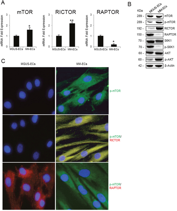 mTOR expression and mTOR activation pathway in MGUS-ECs and MM-ECs.