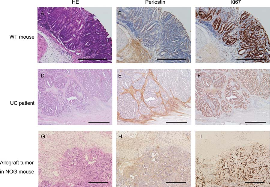 Periostin expression in colorectal cancer.
