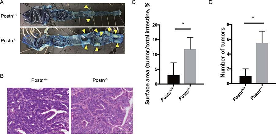 Colitis-induced colorectal cancer development was facilitated in Postn−/− mice.