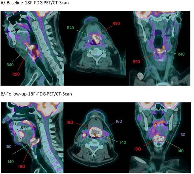 Oncotarget | Use of baseline 18F-FDG PET scan to identify