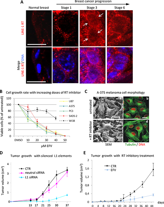 RT inhibition recapitulates the global reprogramming of cancer cell phenotypes observed with LINE-1 element silencing.