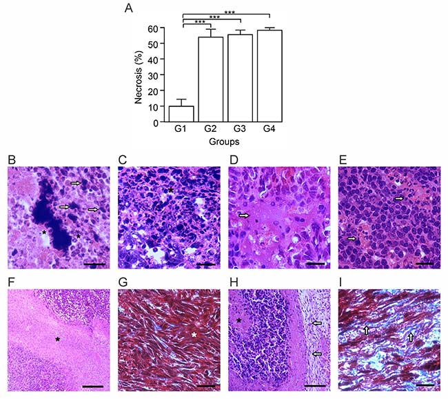 Autologous tumor cells/BCG/formalin vaccine induces morphological changes and extensive necrosis in 4T1 tumor.