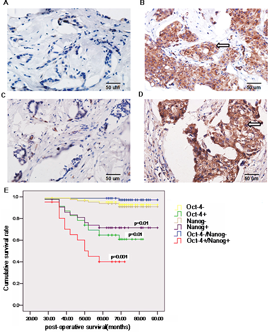 Oct-4 and Nanog expression is associated with the prognosis of breast cancer patients.