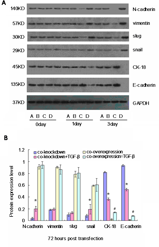 Western blot analyses of relative expression levels of epithelial-mesenchymal transition (EMT)-related genes in cancer stem cells (CSC) following simultaneously modulation of Oct-4 and Nanog expression and TGF-β stimulation in vitro.