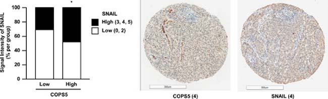 COPS5 expression is positively correlated with SNAIL expression in lung adenocarcinoma tissues.