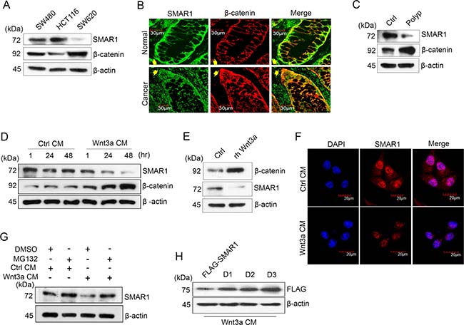 SMAR1 is downregulated in Wnt signaling driven CRC.