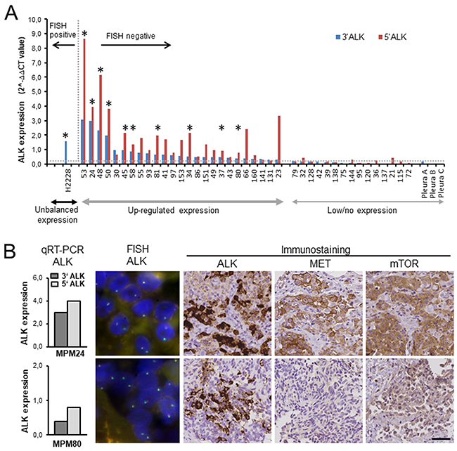 Expression of ALK, MET and mTOR in mesothelioma tumor tissue samples.