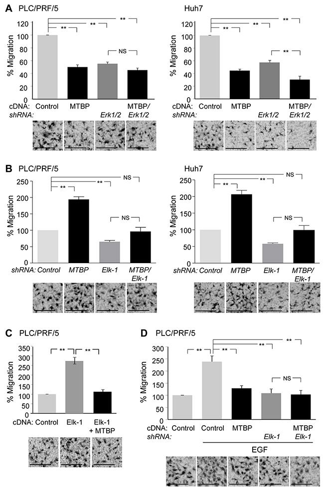 MTBP inhibits HCC cell migration through suppressing the Erk1/2-Elk-1 axis.