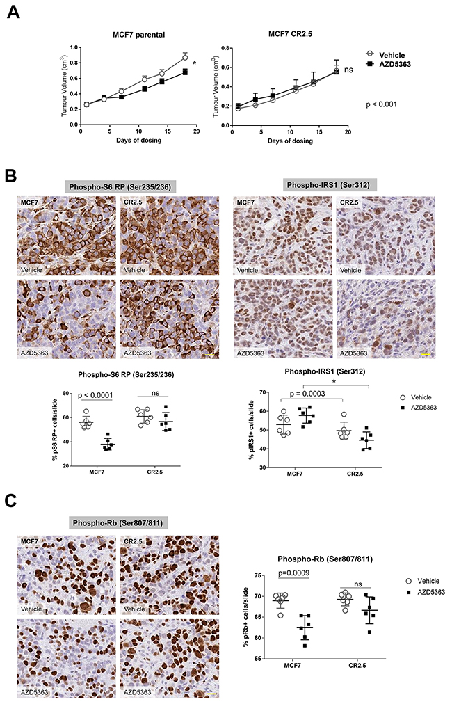 MAP3K1-deficient tumors are resistant to AZD5363 treatment.